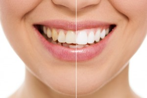 Whiten teeth at home with these DIY recipes! Via Shutterstock.