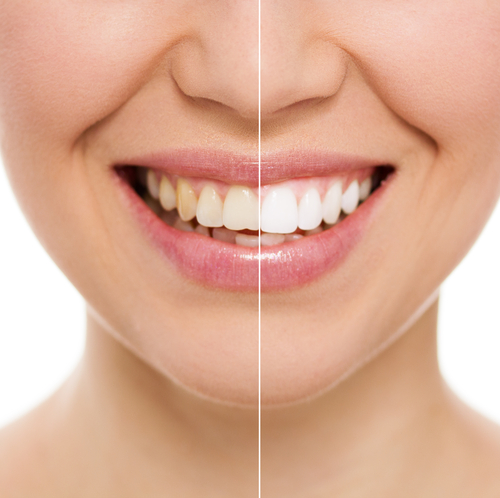 How To Make Teeth Whitening Toothpaste 4 Recipes